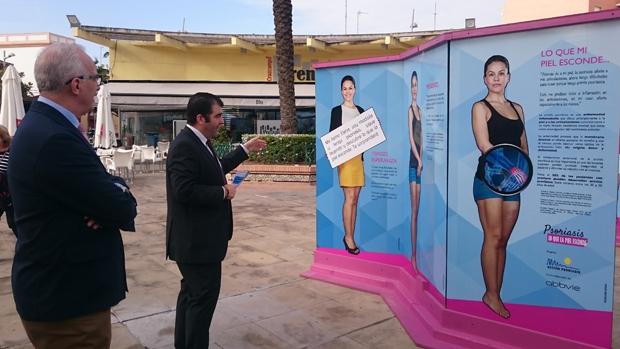 Exposición sobre la psoriasis
