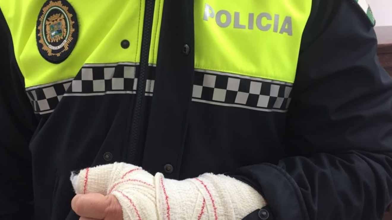 Uno de los policías locales ha sufrido una fractura de escafoides
