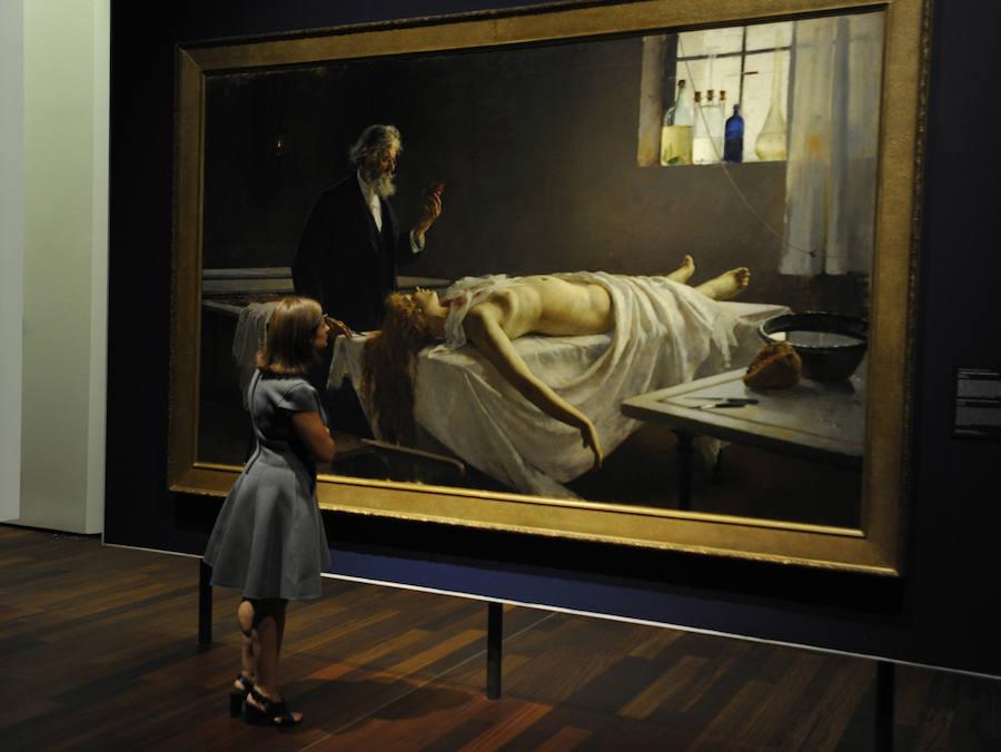El cuadro más importante de la colección ¡Y tenía corazón!, de Enrique Simonet, que representa la autopsia de una prostituta y que envió en 1810 como estudio anatómico
