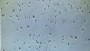 Científicos españoles logran el primer paso para crear espermatozoides a partir de la piel