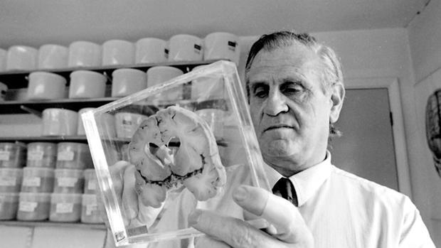 El profesor J. A. N. Corsellis, el inaugurador de la colección que recogió cerebros desde los años 50