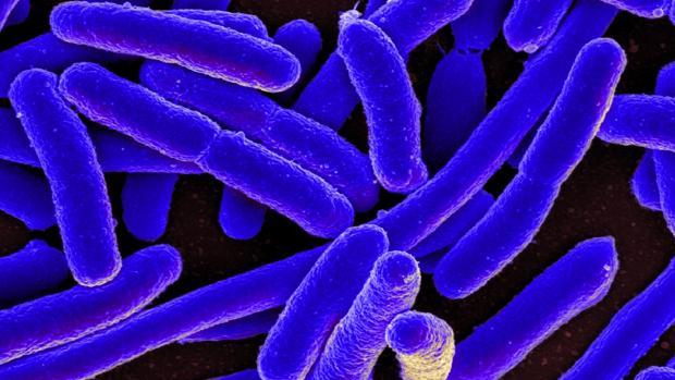Imagen coloreada de bacterias Escherichia coli vistas al microscopio electrónico