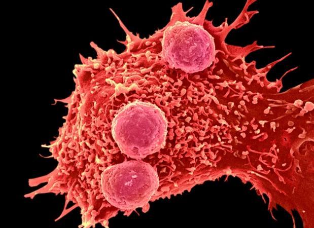 La edición de genes tiene múltiples aplicaciones, pero puede usarse para potenciar el sistema inmune para que luche contra algunos tipos de tumores