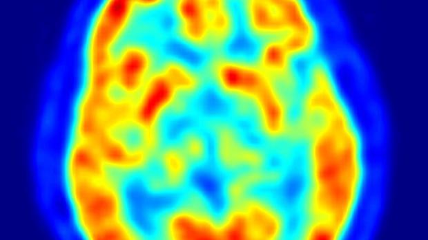 Resonancia cerebral en la que se aprecian los distintos niveles de actividad de varias zonas