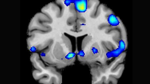 Varias regiones del cerebro se activan en una experiencia espiritual, que incluye un circuito de recompensa, el núcleo accumbens.