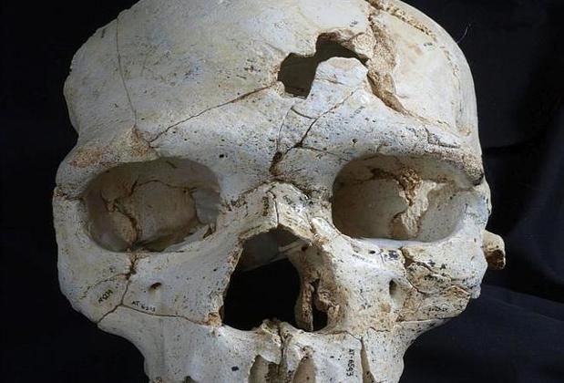 Vista frontal del Cráneo 17, con los dos impactos que causaron la muerte del individuo