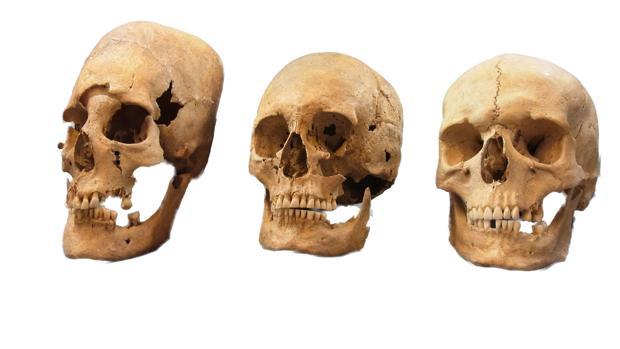 Cráneos con distinto estado de alteración. Se vendaba la cabeza de las niñas para cambiar su forma, como señal de alto nivel socioeconómico