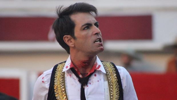 Arturo Macías, con la herida en el cuello