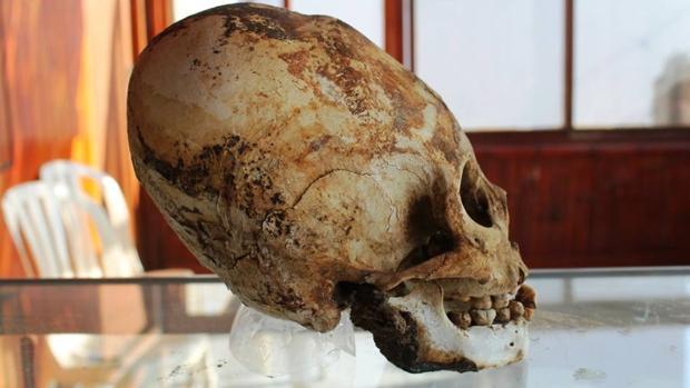 Cráneo de un poblador de la cultura prehispánica de Tiahuanaco