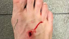 Así quedó el pie de Filipe Luis tras una entrada de Luis Suárez