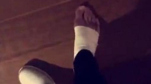 La imagen del pie de Neymar tras un Barcelona-Athletic