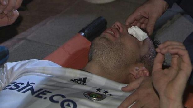 Van persie, atendido después de sufrir el codazo en el ojo