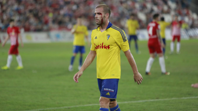 Ortuño sufrió una brecha durante el partido.