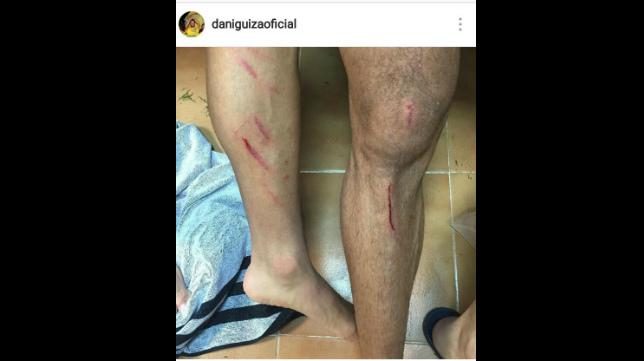 Así quedaron las piernas de Álvaro y Güiza tras el partido ante el Levante.