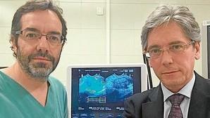 Los tumores de páncreas podrían reducirse a través de endoscopias