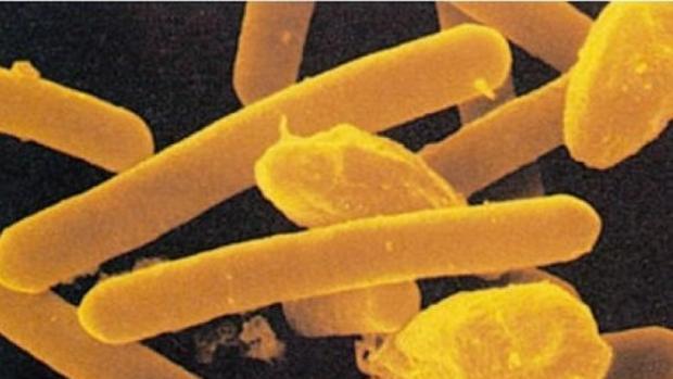 Imagen microscópica de la toxina botulímica