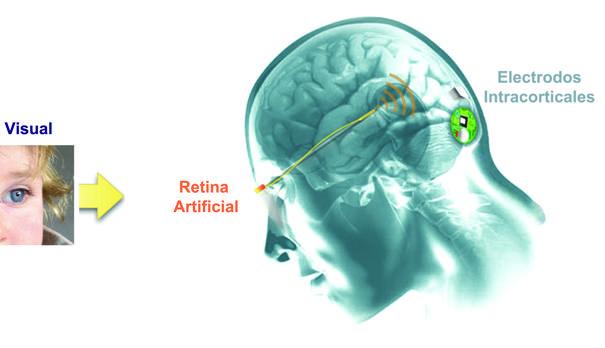 Esquema de funcionamiento del nuevo dispositivo implantable