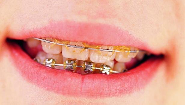 Aparato de ortodoncia