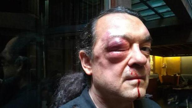Dos detenidos en relación con la agresión a Fernando Barredo, de Podemos