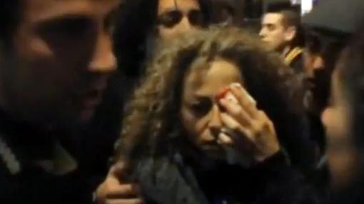 Ester Quintana, que perdió un ojo tras ser alcanzada en noviembre de 2012 pro una bala de goma
