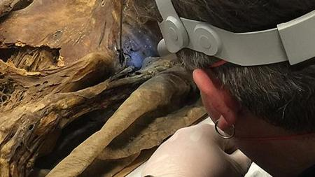 Un científico analizando una momia canaria