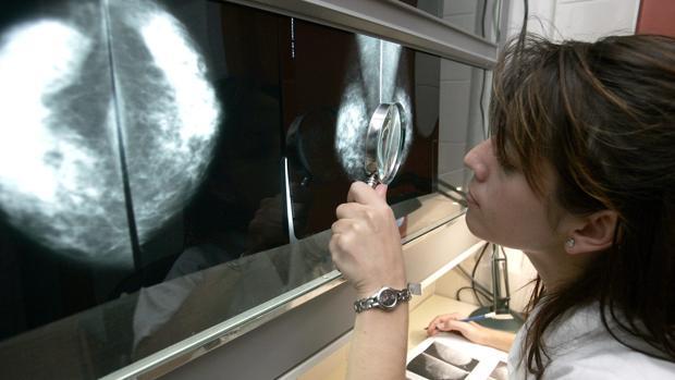 Una doctora revisa el resultado de una mamografía