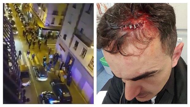 Arriba, la captura del despliegue policial; a la derecha, el agente con la brecha en la cabeza