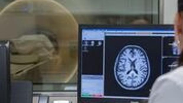 Las resonancias magnéticas revelan si hay indicios de la enfermedad en el cerebro