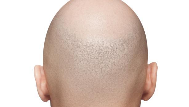 La alopecia ha sido el eje del curso realizado en el Hospital Ramón y Cajal