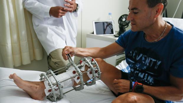 Uno de los pacientes sometido a la técnica de regeneración ósea en el Hospital Vall d'Hebron