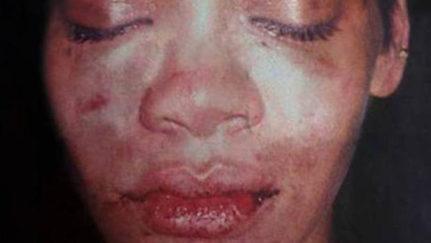 Una imagen de Rihanna tras la brutal paliza