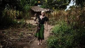 Persiguen y queman vivas a siete personas acusadas de brujería en Malawi