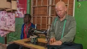 Malaui lucha por detener los asesinatos de las personas con albinismo causados por la brujería