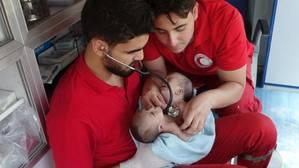 Dos bebés siameses logran romper el cerco de la guerra en Siria