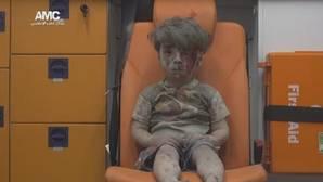 El niño que representa el sufrimiento de Alepo