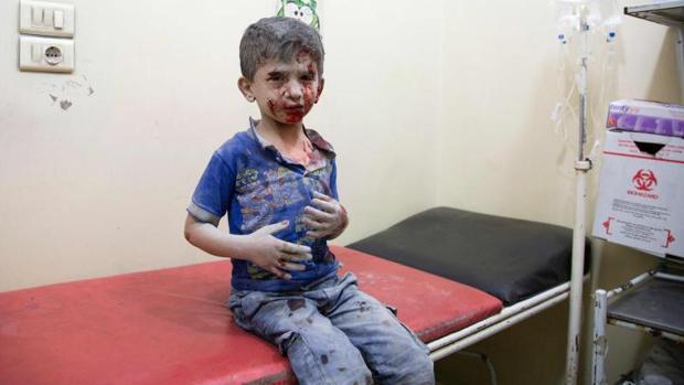 Un niño sirio es atendido en un hospital tras resultar herido en uno de los bombardeos a Alepo
