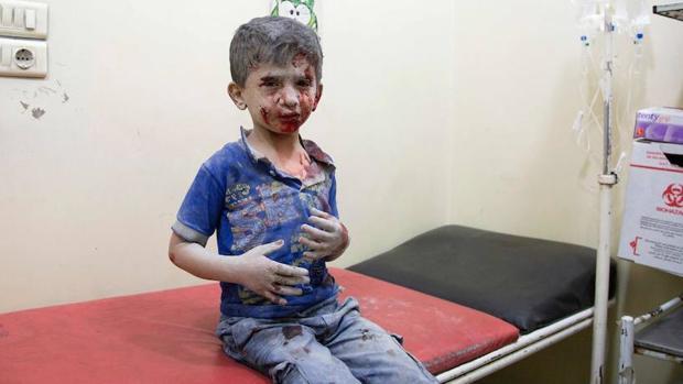 Un niño espera atención médica en un hospital de Alepo