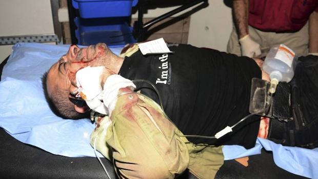 Un hombre herido recibe asistencia médica en un hospital de Alepo