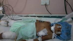 Una niña de 4 años muere en Alepo al confundir una bomba de racimo con un juguete