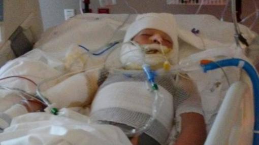 Kayden Culp permanece hospitalizado después de que otros dos niños le prendiesen fuego