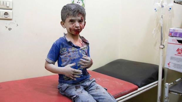 Un niño sirio en un hospital de Alepo