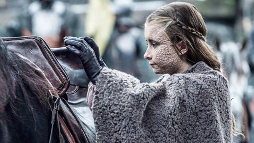Shireen Baratheon sobrevivió a la Psoriagrís, pero no a su padre