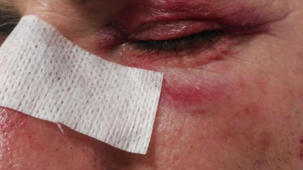Imagen del funcionario que resultó agredido por un preso el pasado viernes. Le propinó puñetazos y patadas en la cara.