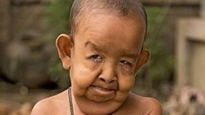 El extraño caso a lo «Benjamin Button» del niño de 4 años que parece tener 80