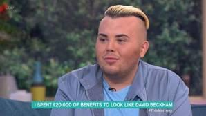 Así ha quedado el adolescente británico que lleva gastados 23.000 euros para ser como David Beckham