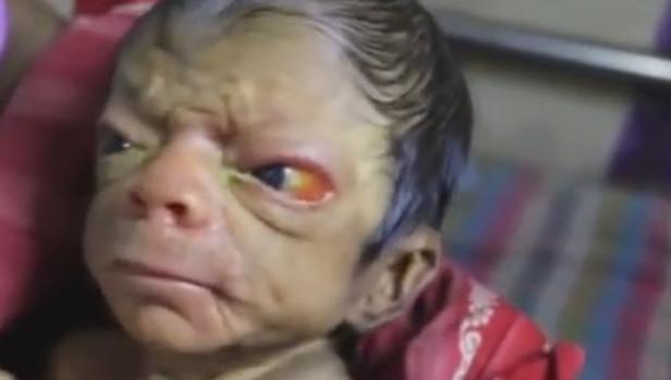 Youtube:  El extraño caso del bebé de Bangladés con cara de anciano y pelos en la espalda