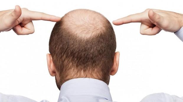 La calvicie es uno de los problemas que más sufren los hombres