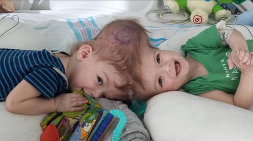 Los gemelos Jadon y Anias McDonald nacieron unidos por la cabeza