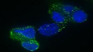 Identificada una nueva diana terapéutica para el tumor cerebral más común