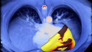 Un 'corazón virtual 3D' predice el riesgo de arritmias tras un ataque cardiaco